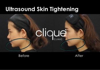 ultrasound skin tightening