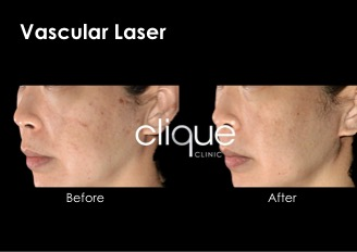 vascular laser