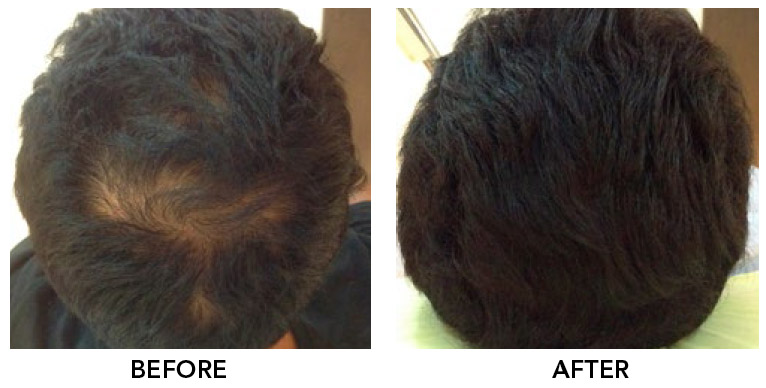 Hair Treatment - Baldness Treatment In Kuala Lumpur Selangor Malaysia 1 4