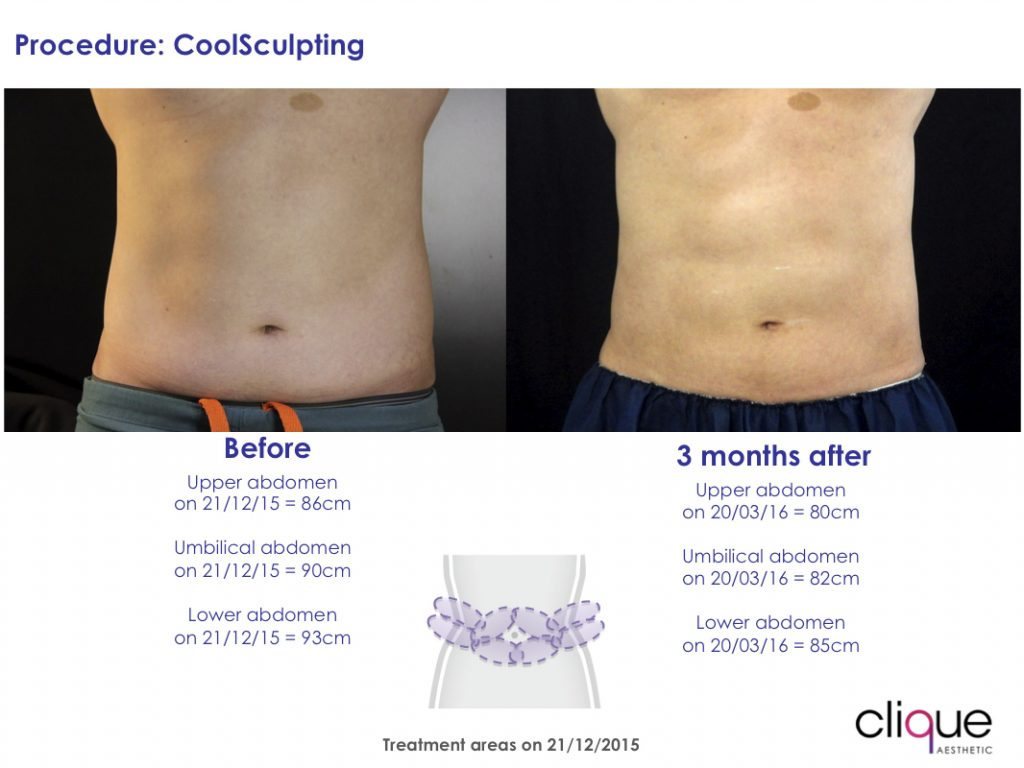 CoolSculpting on Abdomen Before & After Front View