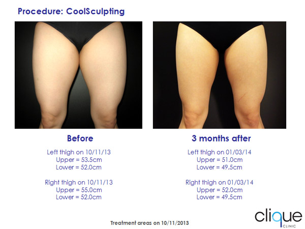 CoolSculpting on Thigh Before & After