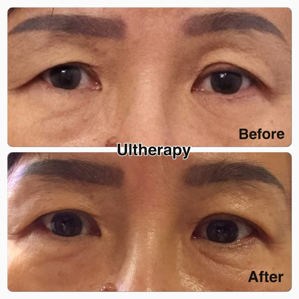 Ultherapy Malaysia | Non-Invasive Facelift - Clique®Clinic