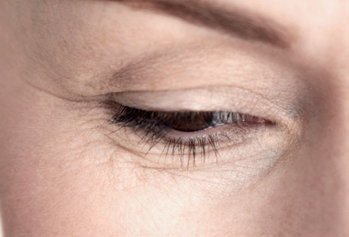 Fine Lines Under Eyes Treatment Xeomin®Clique® Clinic