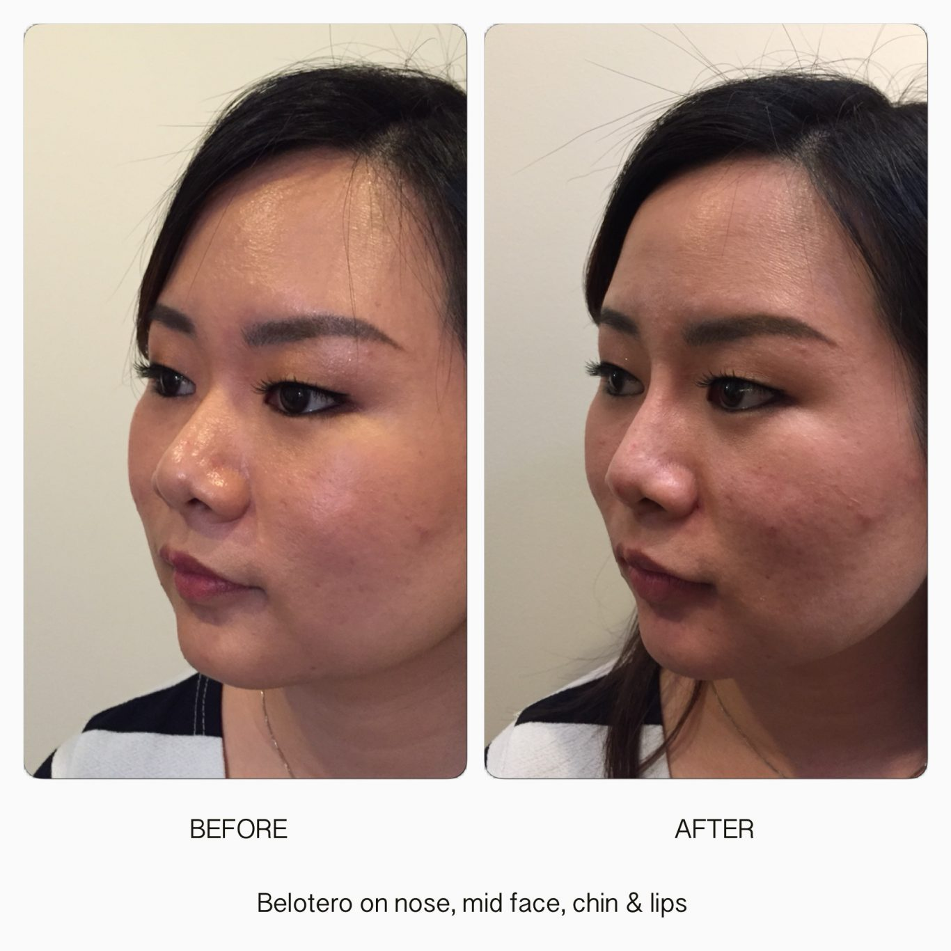 Dermal Fillers - dermal fillers treatment 3 5