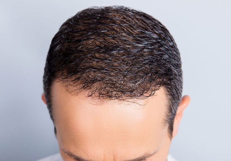 Hair Treatment - hairrestorationpic 2