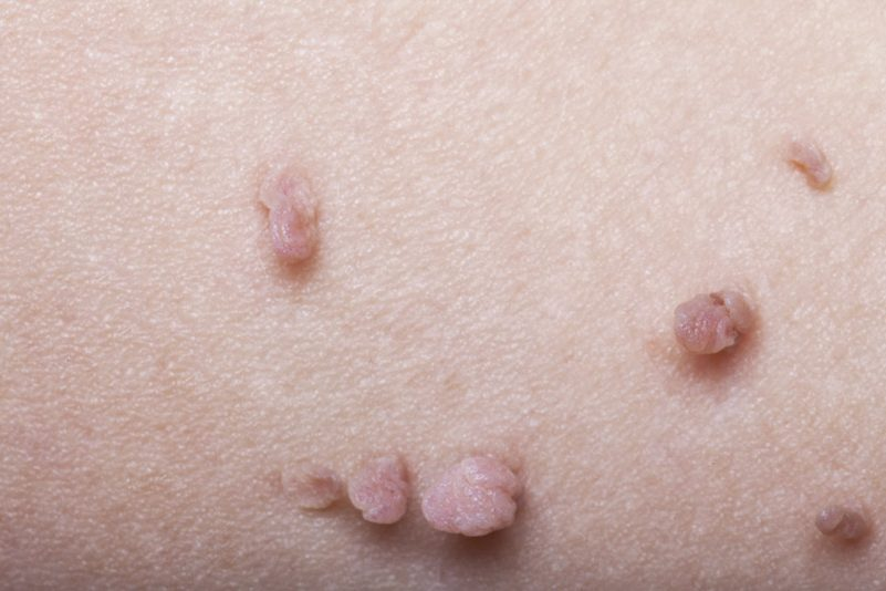Skin Tag Removal - Clique® Clinic