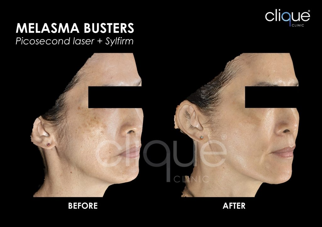 Before and After Result for Melasma Busters using Picosure Pico Laser in Malaysia