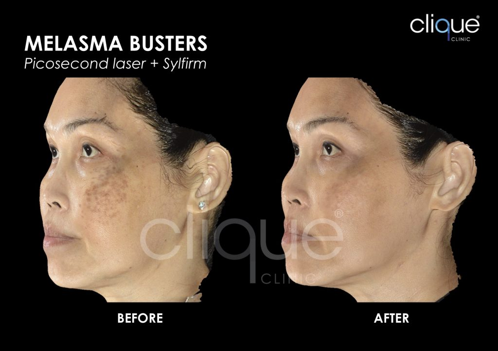 Before and After Result for Melasma Busters using Picosure Picosecond Laser and Sylfirm in Malaysia