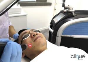picosure_clique_clinic