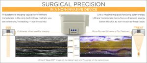 ultherapy_ultrasound_screen