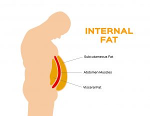 Abdominal Fat: Health Risks and 10 Effective Treatment Options