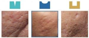 医美界的神奇烫斗---Tixel 提可塑 - scars e1578632431526 1