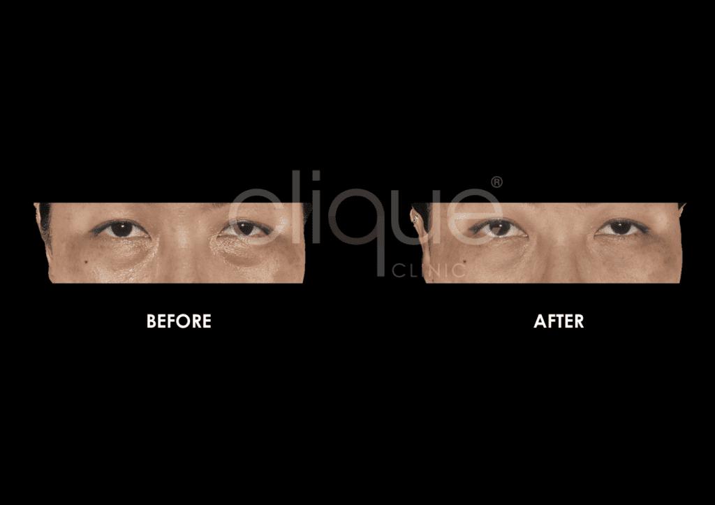 Sylfirm_Eye_Clique_Clinic