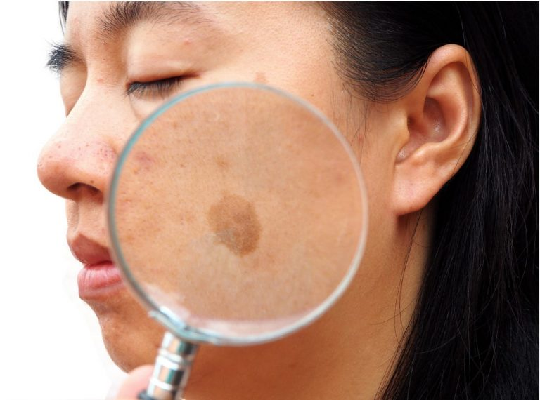 Can Melasma Turn Into Cancer?