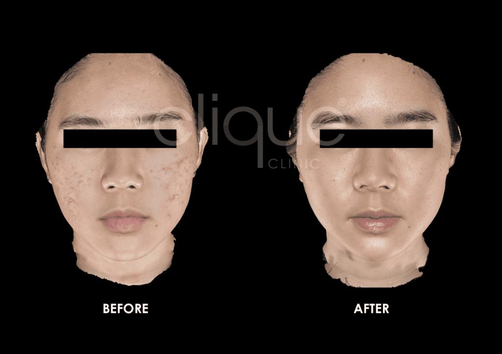 Tixel_Sylfirm_Clique_Clinic