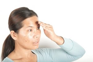 What Is The Best Way To Treat Melasma?