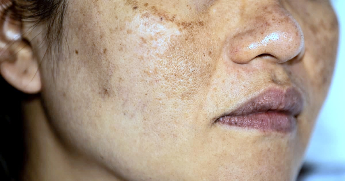 How Can I Reduce Melasma On My Face?