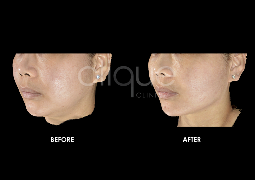 sylfirm_skin_tightening_clique_clinic