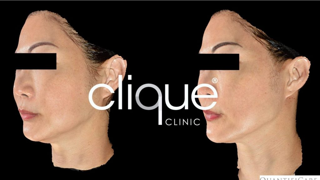 CliqueclinicUltherapy