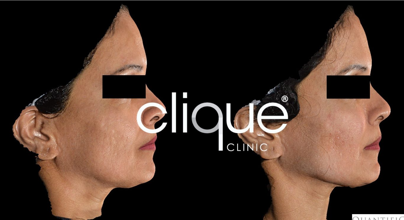 Malaysia Dermal Fillers - Natural, Safe & Bio-Compatible