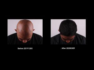 Radiesse® Plus - Hair1 2