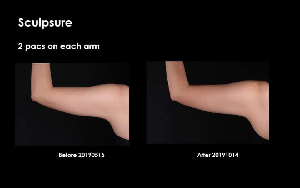 sculpsure_arm