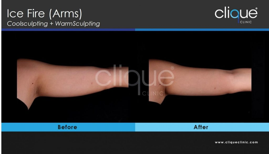 CoolSculpting - Ice Fire Arm HOQ 1