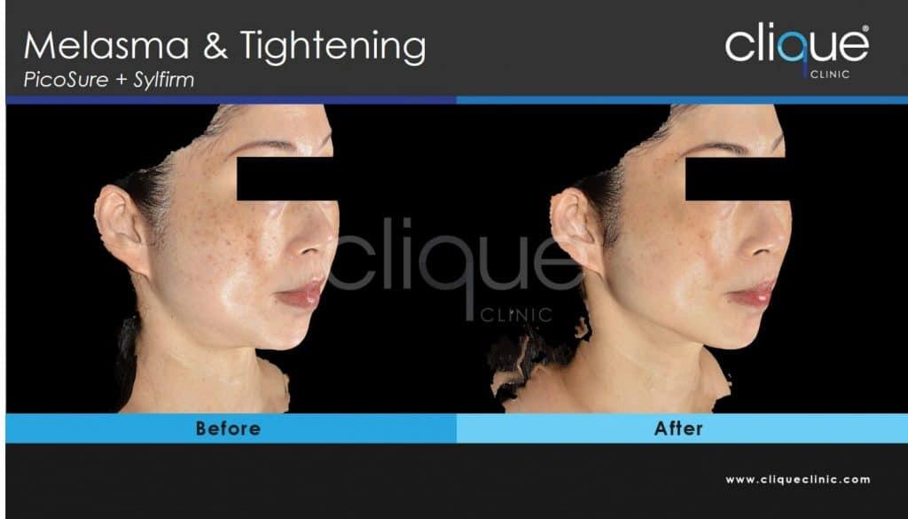 Melasma_Sylfirm_Clique_Clinic
