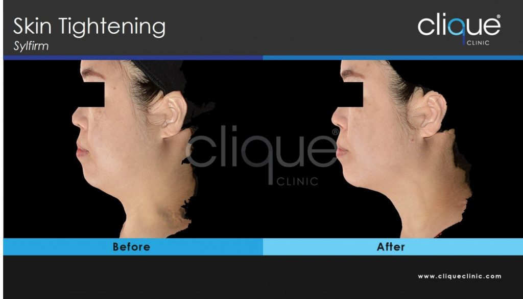 CliqueClinic_Sylfirm_Jawline