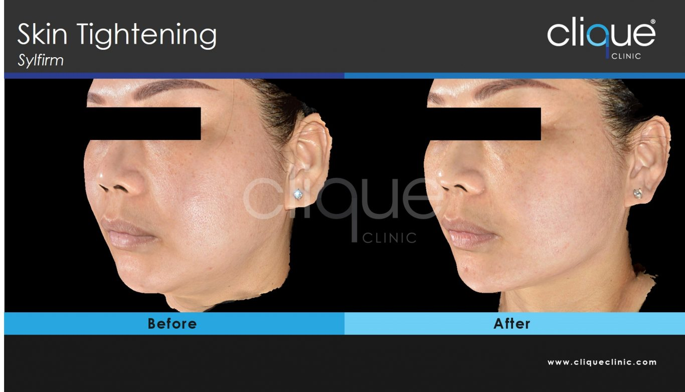 Sylfirm_jawline_cliqueclinic