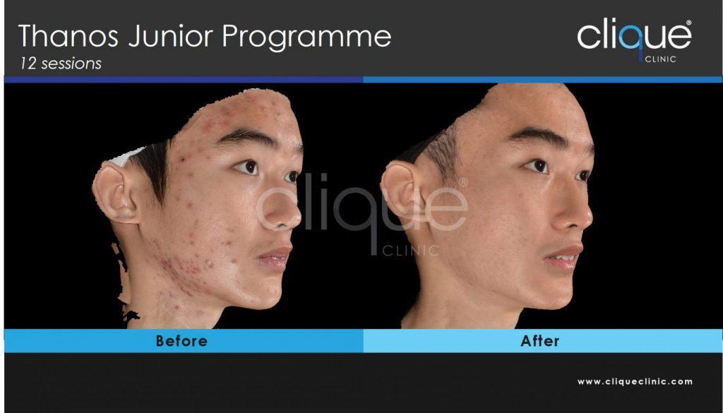 Cliqueclinic_scarsprogramme