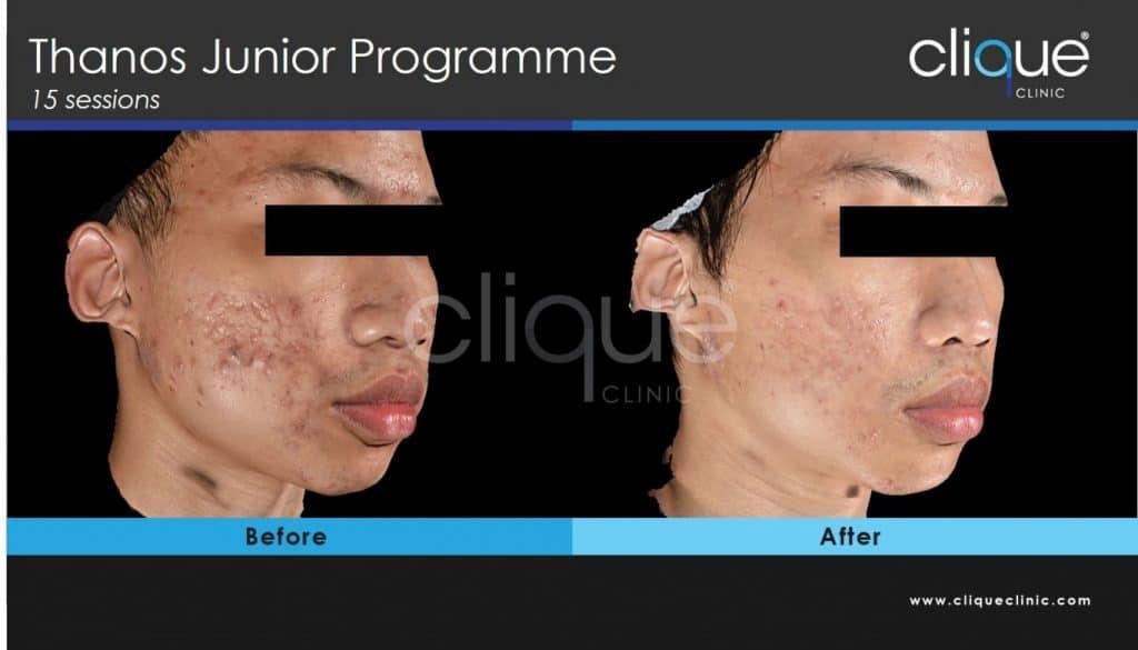 CLique_clinic_scars_programme