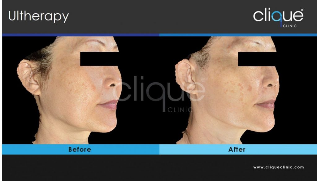 Cliqueclinic_Ultherapy