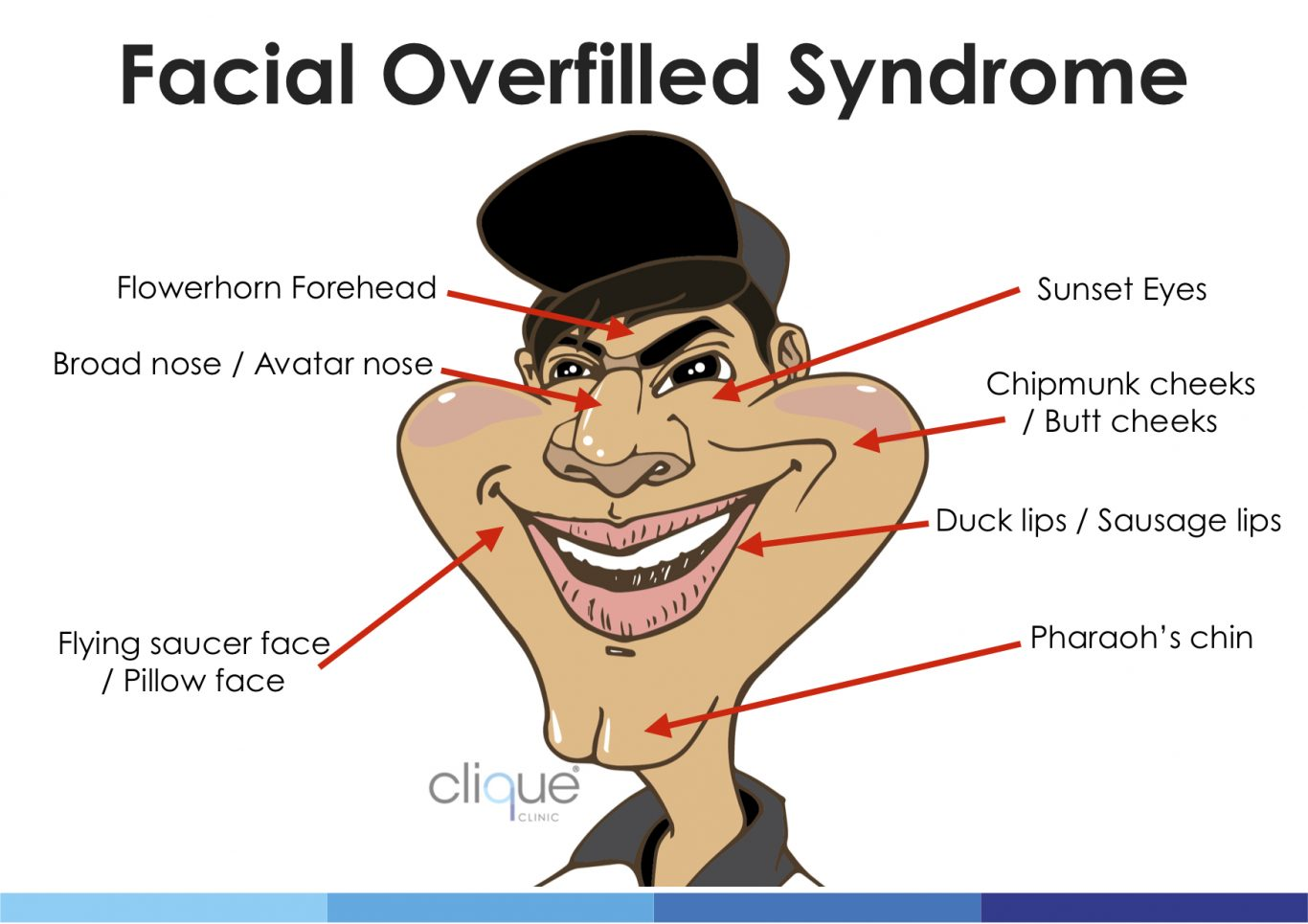 How to avoid Facial Overfilled Syndrome with fillers? 4 things you should know. - Facial Overfilled Syndrome Man 1