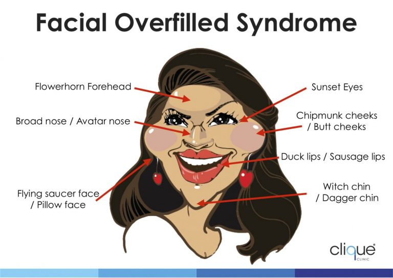 How to avoid Facial Overfilled Syndrome with fillers? 4 things you should know.