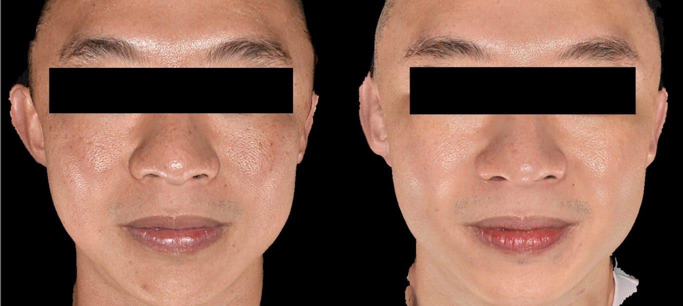黑斑治疗(混杂型):皮秒镭射和Sylfirm X治疗后的效果