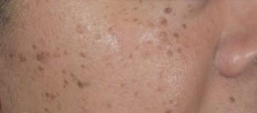 為何黑斑那么难治?谈黑斑和祛斑的4大 How 与 Why - Seborrheic keratosis 418x349 1 2