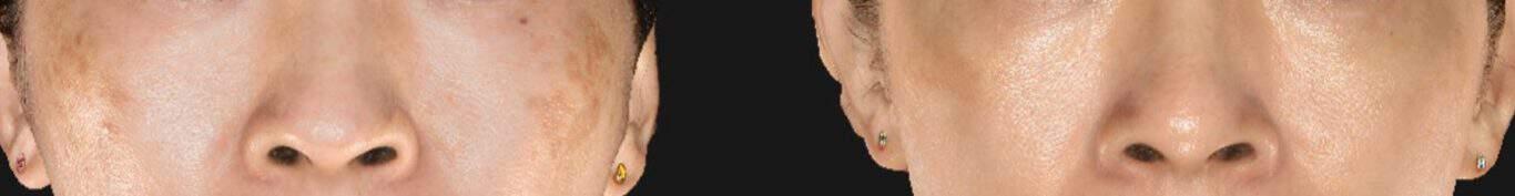 黑斑治疗(早期肝斑):皮秒镭射和Sylfirm X治疗后的效果