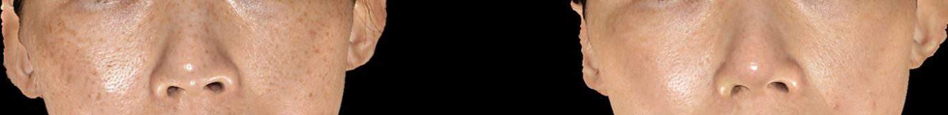 黑斑治疗(雀斑):皮秒镭射和Sylfirm X治疗后的效果