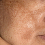 晚期黄褐斑 (肝斑)