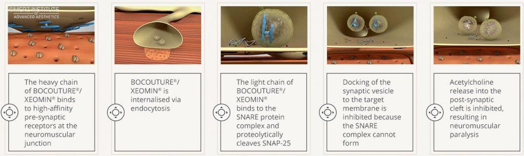 Xeomin Bocouture Neuromodulator Anti Wrinkle
