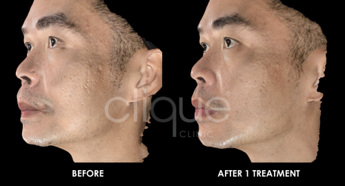 Rejuran_acne_scar_Clique_Clinic