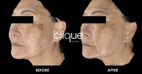 Dual Yellow | Laser Treatment - Clique® Clinic Malaysia
