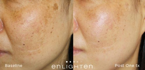 Enlighten-before-after-page-003