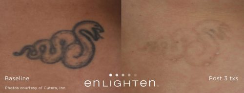 Enlighten-before-after-page-029