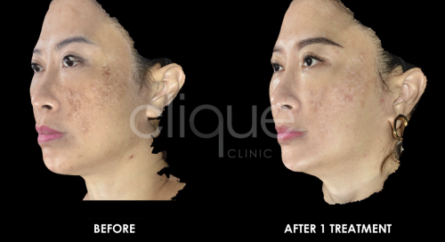 Rejuran_Treating_damaged_skin_Clique_Clinic