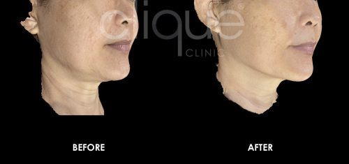 Clique_Clinic_Ultherapy