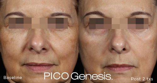 PICO-Genesis-Before-After-2
