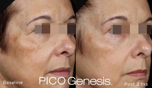 PICO-Genesis-Before-After-3