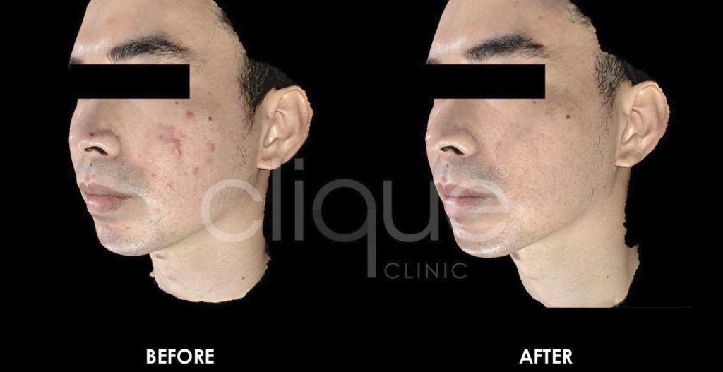 Sylfirm_Rejuran_Combo_Acne_Clique_Clinic